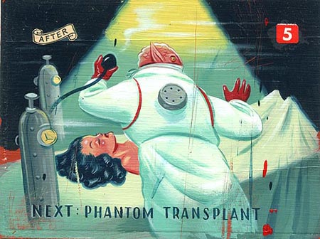The World Organ Trade